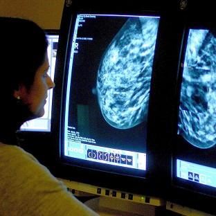 Breast cancer is predicted to kill 88,886 women in Europe this year, and lung cancer to kill 82,640